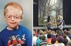 Abbandonato alla nascita per la sua malattia: oggi sono in migliaia ad ascoltare le sue parole