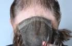 Problema con la calvicie? El remedio de una joven empresa los dejara con la boca abierta