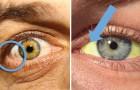12 aandoeningen die we aan de hand van onze ogen kunnen vaststellen