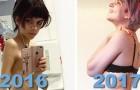 Die Magersucht besiegen: Diese Fotos von Leuten die es geschafft haben, brauchen keine Worte