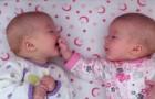 2 enäggstvillingar känner igen sig för första gången: deras
