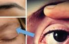 Waarom trilt ons ooglid voortdurend? Dan wil het lichaam ons iets vertellen