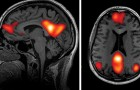 Volgens nieuw onderzoek verandert depressie de verbindingen in de hersenen