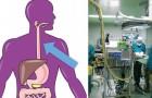 Salvato un malato di cancro. Due italiani gli impiantano un esofago artificiale