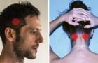 Hur man lindrar huvudvärk på 5 minuter och undviker att ta mediciner