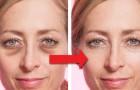 9 rimedi fai-da-te per sbarazzarsi delle occhiaie in poco tempo