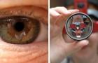 Cellules souches: deux personnes retrouvent la vue grâce à une opération jamais tentée auparavant