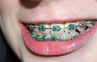 I dentisti avvertono che l'apparecchio ai denti potrebbe essere del tutto inutile: ecco cosa hanno scoperto