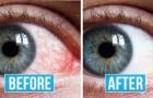 8 exercices utiles pour ceux qui ont les yeux rouges et fatigués