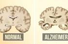 Prevenire l'Alzheimer può essere più facile di quanto pensi: ecco 2 cose che puoi fare