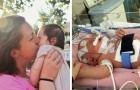 Laat niet toe dat iedereen je kind kust, want dan kan er gebeuren wat deze baby is overkomen