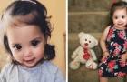 This little girl has a genetic malformation and her huge eyes have conquered thousands of people