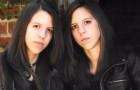 Ces jumelles ont surmonté les préjugés et ont suivi une thérapie pour devenir des hommes