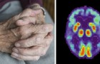 Un team di ricercatori ha sviluppato un vaccino contro l'Alzheimer: ottimi risultati sui topi