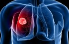 Secondo i ricercatori, il futuro della lotta al cancro è più promettente che mai grazie ad una nuova terapia