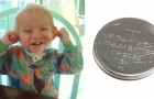 En liten pojkes liv förändrades drastiskt på grund av ett vanligt batteri, nu vill föräldrarna varna andra
