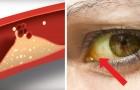 Hoher Cholesterinspiegel: 10 Symptome, die NIE unterschätzt werden sollten
