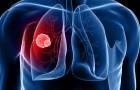 Een wetenschappelijk onderzoek ontdekt het mechanisme om kankercellen te