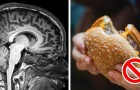 Les 13 habitudes négatives qui vieillissent notre cerveau avant l'heure