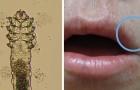 Même si vous ne le savez pas, des dizaines de créatures comme celle-ci vivent sur votre visage : voici de quoi elles se nourrissent