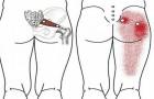 10 exercices d'étirement faciles pour éliminer les douleurs au dos, à la hanche et au nerf sciatique