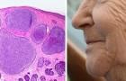 Das Anti-Aging-Medikament, das alte Zellen eliminiert, besteht den ersten menschlichen Test mit Bravour