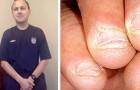 An den Fingernägeln zu kauen, kann sehr gefährlich sein: Die traurige Geschichte dieses Mannes zeigt uns, warum