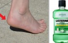 Cracked heels? Here is what you can do to get rid of this annoying and unsightly condition