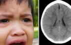 Jeugdtrauma's beperken de hersengroei en de ontwikkeling van kinderen: de wetenschap bevestigt dit