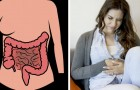 Colon cancer - Here are all the symptoms that can help you diagnose it in time
