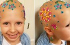 This little girl diagnosed with alopecia participates in a