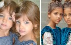 These 7-year-old girls are considered by many to be the most beautiful twins in the world