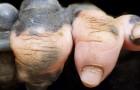 Un gorilla nato con una mancanza di pigmentazione sulla mano ci ricorda quanto questi animali ci assomiglino