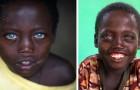 Dit Ethiopische kind werd geboren met een zeldzame genetische mutatie waardoor zijn ogen ongewoon blauw zijn