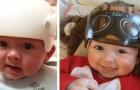 Esta artista faz as crianças sorrirem, transformando capacetes ortopédicos em lindos capacetes coloridos