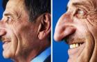 O nariz deste homem mede 8,8 cm: um recorde que o fez entrar no Guinness Book of Records
