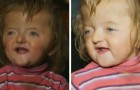 Daycare center refuses to admit 2-year-old with a skull malformation because she would