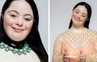 Ellie is het eerste model met het Downsyndroom dat poseert voor Gucci, wat aantoont dat een beperking geen obstakel is