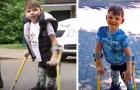 Een kind met een beenprothese loopt 10 km en haalt meer dan 1 miljoen op voor het ziekenhuis dat hem heeft gered