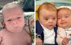 """15 Fotos von Kindern, die gerade geboren wurden, aber schon """"alt"""" aussehen"""