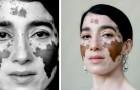 Eine Fotografin mit Vitiligo macht Aufnahmen, in denen sie diesen Zustand in all seiner verborgenen Poesie darstellt