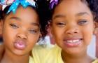 Deze tweeling is een beroemdheid geworden dankzij de specifieke genetica van hun magnetische ogen