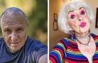 Midorexia, la enfermedad de quien no quiere envejecer: un estado de ánimo más común de cuanto se piensa