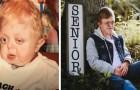 Ze zeiden dat hij niet ouder zou worden dan 18 maanden, maar deze gehandicapte jongen werd 18 en studeerde af