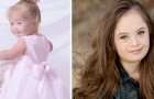 Questa ragazza Down ha sconfitto una leucemia e ha coronato il suo sogno: ora è una top model di successo