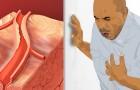 Dies sind 5 Anzeichen, die auf einen fortschreitenden Herzinfarkt hinweisen können: Sie zu kennen, kann Ihr Leben retten