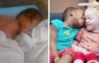 En kvinna föder tvillingar med olika hudfärg vilket är en mycket ovanlig händelse
