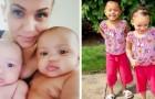 Dos gemelas nacen de los mismos padres, pero con el color de piel diferente: un verdadero prodigio de la naturaleza