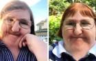 Ze wordt op internet gepest vanwege haar handicap: als reactie plaatst ze een jaar lang selfies