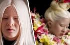 Dit albino meisje werd door haar ouders in de steek gelaten vanwege haar uiterlijk, maar vandaag is ze model voor Vogue
